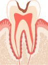 C2 象牙質まで浸食されて穴が開いている状態