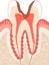 C3 歯髄まで侵され、大きな穴があいた状態