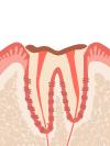 C4 歯肉から上の部分(歯冠 )はほとんどなくなり、根(歯根)だけが残された状態