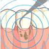 超音波による歯石除去