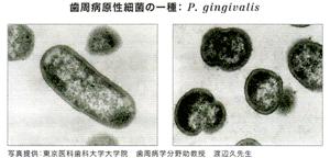 原因はプラーク中の細菌