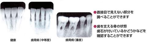 歯周病X線写真検査