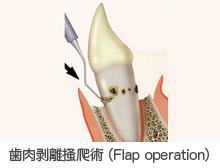 歯肉剥離掻爬術(Flap operation)