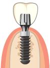 人工歯冠の作製・装着 所要時間 約1週間